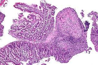 Crohn's_disease