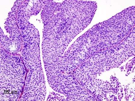 BMS, Infinity to assess Opdivo-IPI-549 combo in urothelial cancer