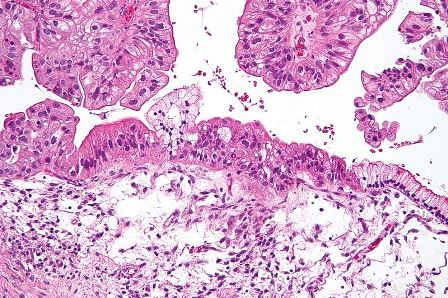 EC approves Clovis' Rubraca to treat women with relapsed ovarian cancer