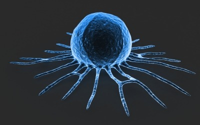NanOlogy enrolls first patient in phase 1/2 clinical trial of NanoDoce to treat bladder cancer