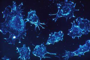 SpringWorks Therapeutics initiates phase 3 trial of Nirogacestat in desmoid tumors