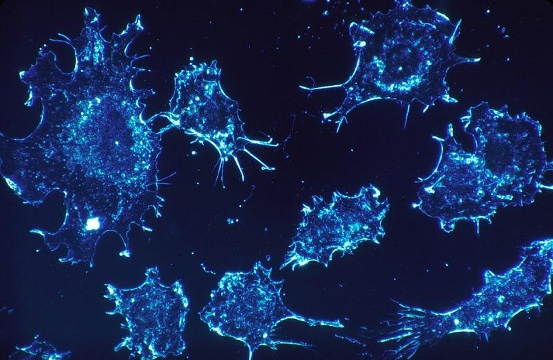 Ipsen, Servier announce initial phase 1/2 data of liposomal irinotecan in metastatic pancreatic cancer