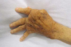 European Medicines Agency validates marketing application for Filgotinib for the treatment of rheumatoid arthritis
