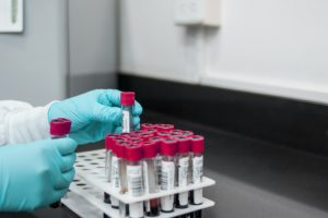 Kedrion Biopharma announces enrollment of first patient in CARES10 trial