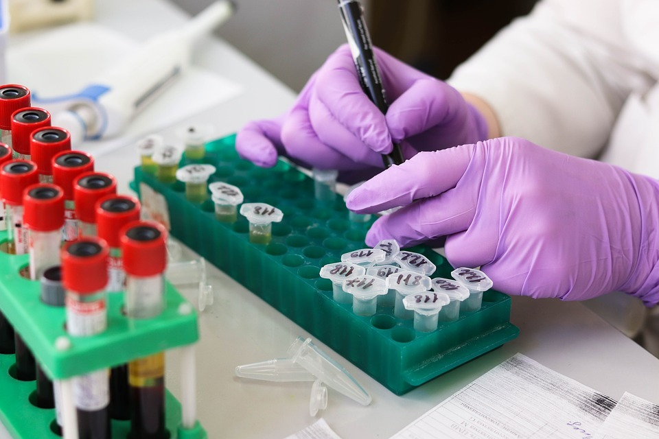 Halozyme's PEGPH20 pancreas cancer drug candidate fails in HALO-301 trial