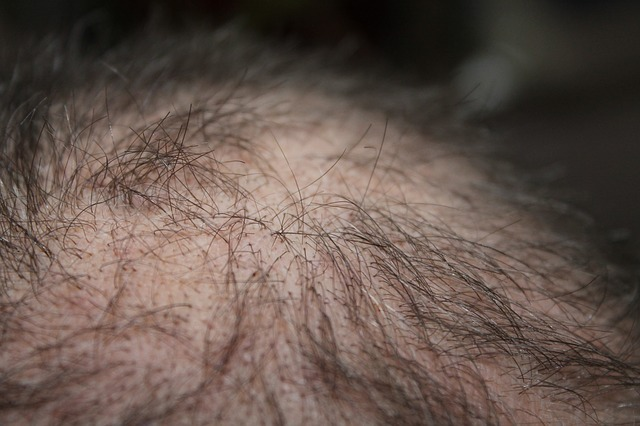 Alopecia areata is an autoimmune disorder that results in patchy or complete hair loss (Credit: kalhh from Pixabay.)