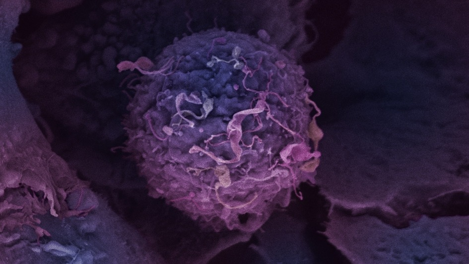 Existing drug offers targeted treatment for aggressive breast cancer