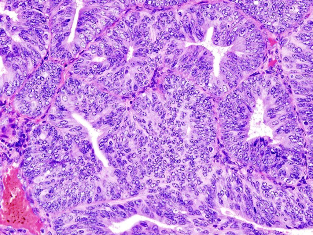 FDA approves Merck, Eisai's Keytruda and Lenvima combination for endometrial cancer