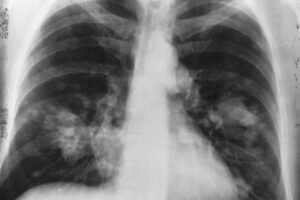 UK's MHRA approves Amgen's sotorasib for non-small cell lung cancer